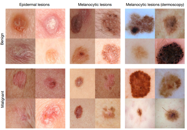 skin-colored-blotch-lesions