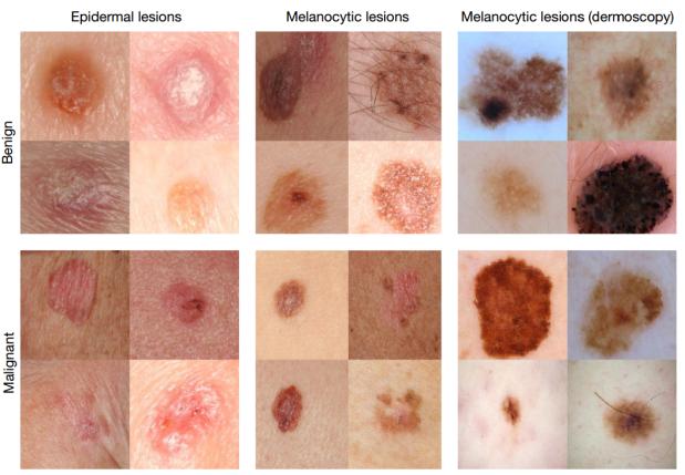 skin-colored-blotch-lesions