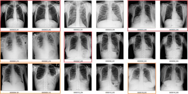 fibrosis labels 1