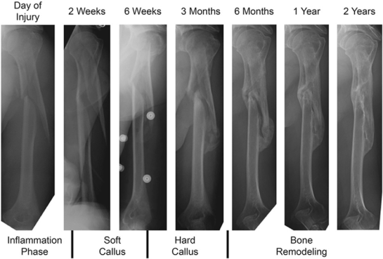 clinical-example-of-humerus-fracture-healing